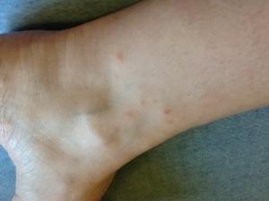 Chiggers bite and feed on the skin, creating intense itching and skin irritation - www.heavenlygaitsequinemassage.com